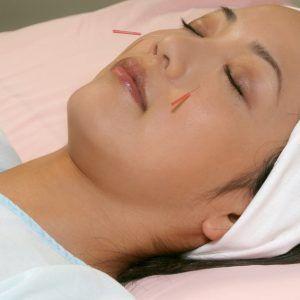 electroacupuntura acupuntura vietnamita